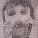 Jean-Pierre Romeu avec son masque de protection en 1976.